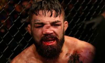 Mike Perry fracture